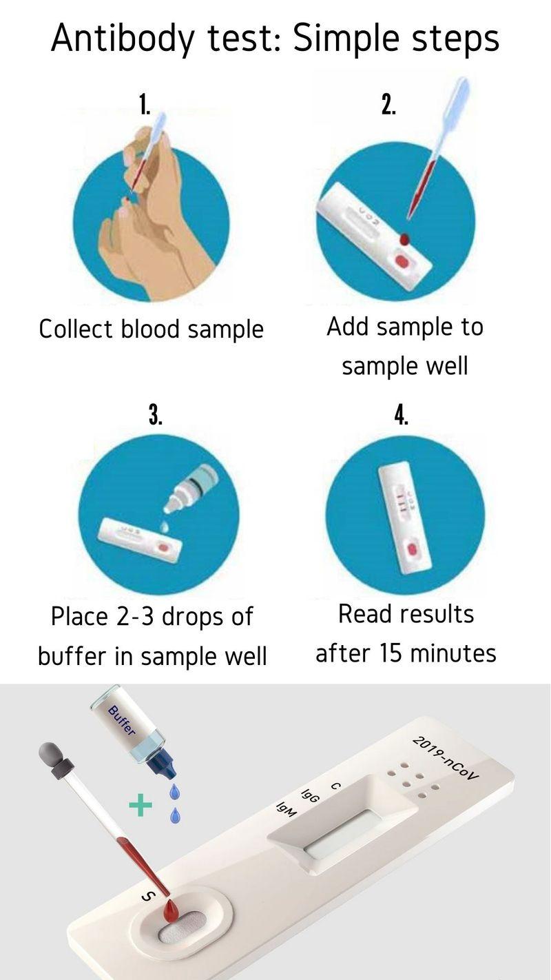 خطوات اختبار الأجسام المضادة