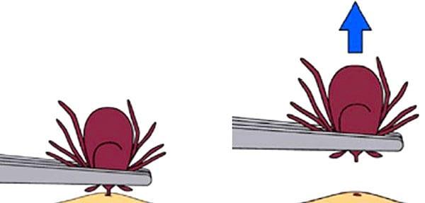كيفية استخراج القراد من الجلد بالملاقط